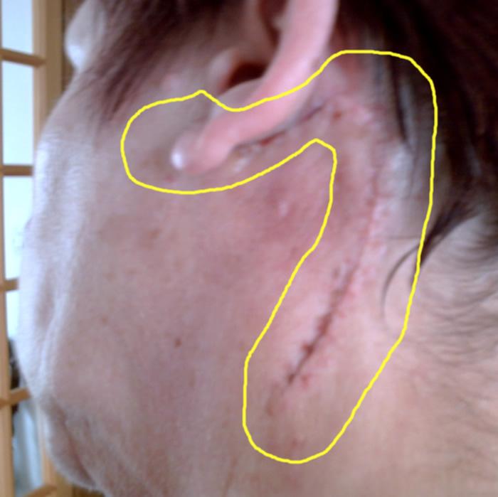 operation du cou